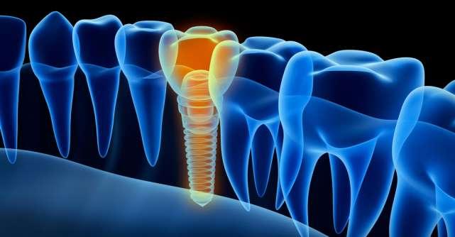 Ce contraindicații există în cazul tratamentului cu implant dentar?