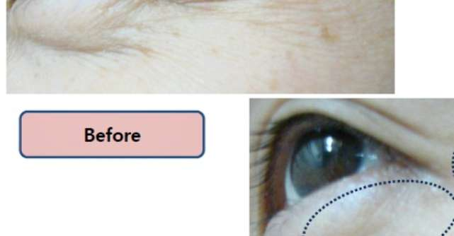 VIVACE - alegere simpla si inteligenta pentru efect anti-aging  garantat, fara durere si fata timp de recuperare