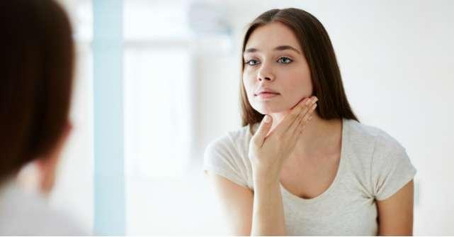3 pasi prin care poti scapa de acnee si cicatrici post-acneice
