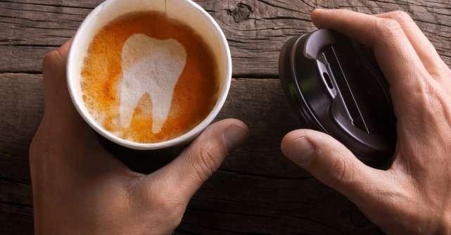 Secretul dinților albi. Ce trebuie să faci ca să-i ai?