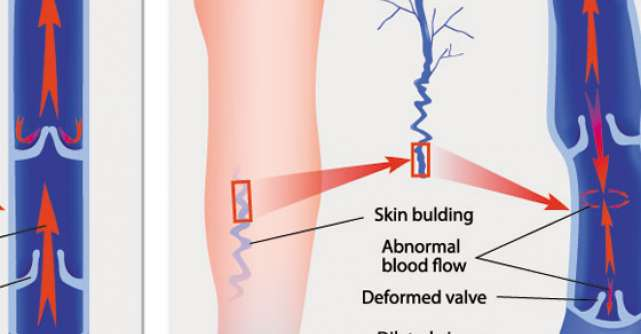 Berea scade riscul de tromboza venoasa