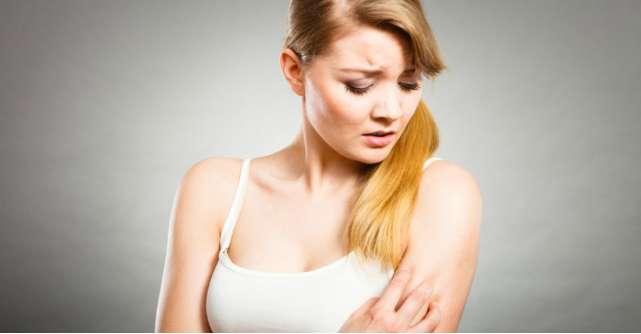 Zona zoster: simptome, tratament si cum se raspandeste