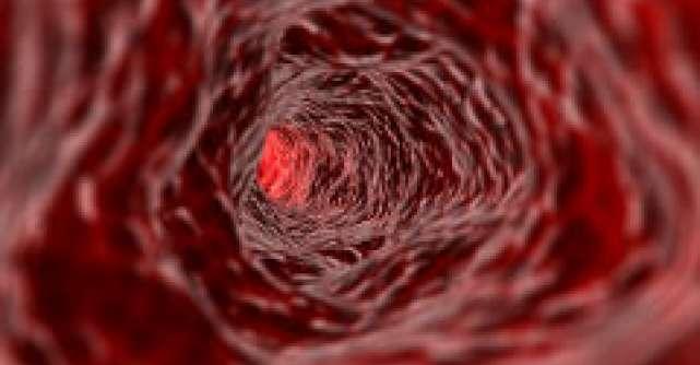 11 beneficii ale fierului in organism