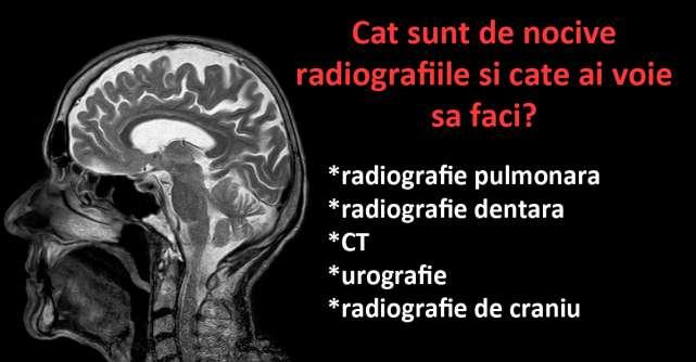 Cat sunt de nocive radiografiile si cate ai voie sa faci?