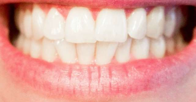 CMMP si medicii stomatologi solicita CNA aprobarea unor mesaje de avertizare privind sanatatea orala