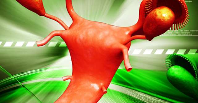 5 Tratamente naturiste pentru CHISTURI OVARIENE