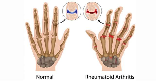 Poliartrita reumatoida, cea mai frecventa boala articulara de tip inflamator