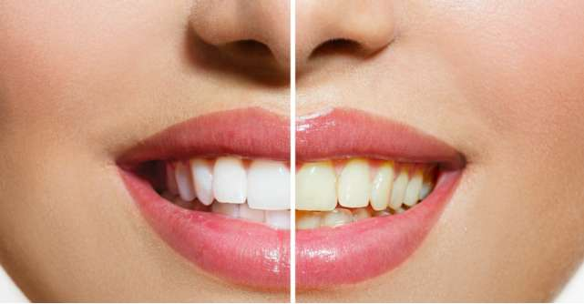 5 cauze ale ingalbenirii dintilor. Cum le poti trata acasa, in mod natural si fara efort