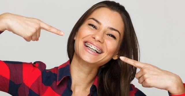 Cum tratezi rapid aftele bucale produse de purtarea aparatului dentar