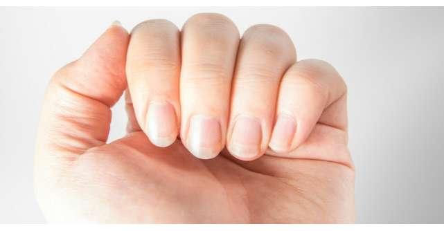 5 lucruri pe care unghiile le spun despre sanatatea ta
