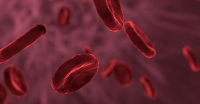 Interpretare analize de sange: Cum afli daca ai ANEMIE