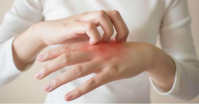 Ce afectiuni poate ascunde o urticarie: cauze, simptome, diagnostic si tratament