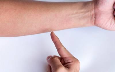 noduli reumatoizi