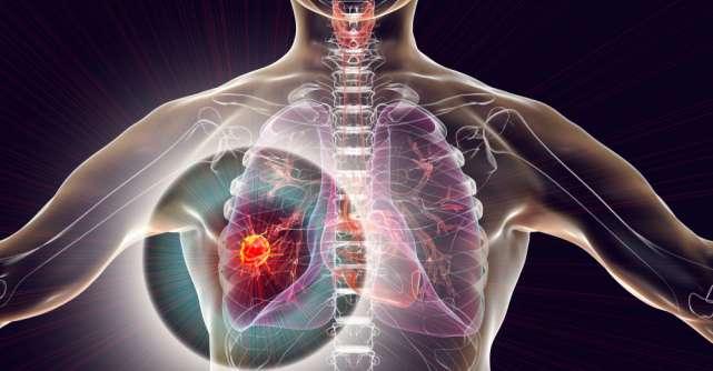 cancer la plamani stadiul 3 papiloma rongga mulut adalah