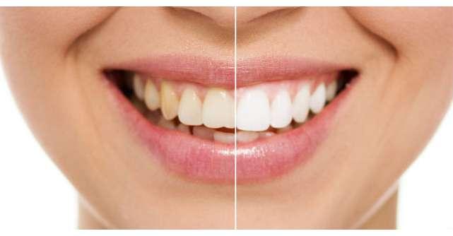 Video: Cum sa iti albesti dintii cu doar doua ingrediente? Tratamentul pe care il poti face acasa