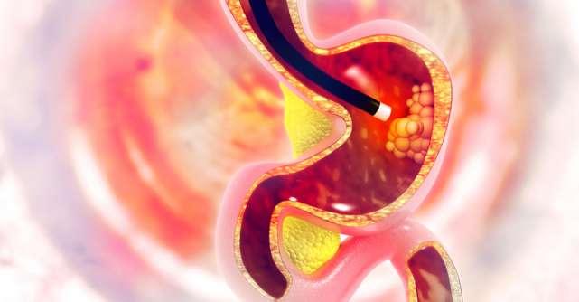 Endoscopia digestivă superioară și colonoscopia: metode de screening, diagnostic și tratament