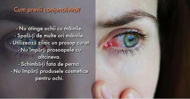 Conjunctivita: care sunt cele mai frecventa cauze si cum sa te feresti