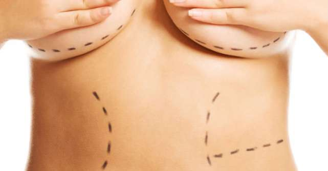 Abdominoplastia, solutia pentru un abdomen plat dupa nastere